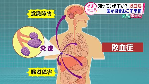 北海道-医pedia|【医療のミカタ】知られざる「敗血症」の恐怖